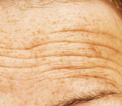 Wrinkles 1